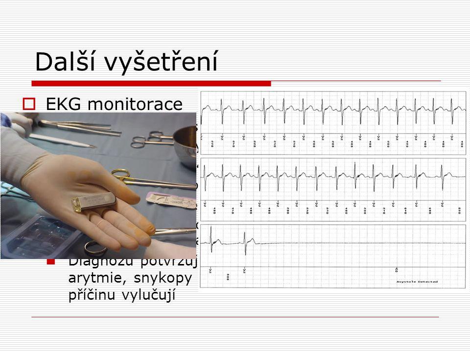 Další vyšetření  EKG monitorace Monitorace za hospitaliazce  Suspekce na artymickou příčinu, vysoce rizikoví Holter EKG (24h, 48h, 7d)  Časté synko