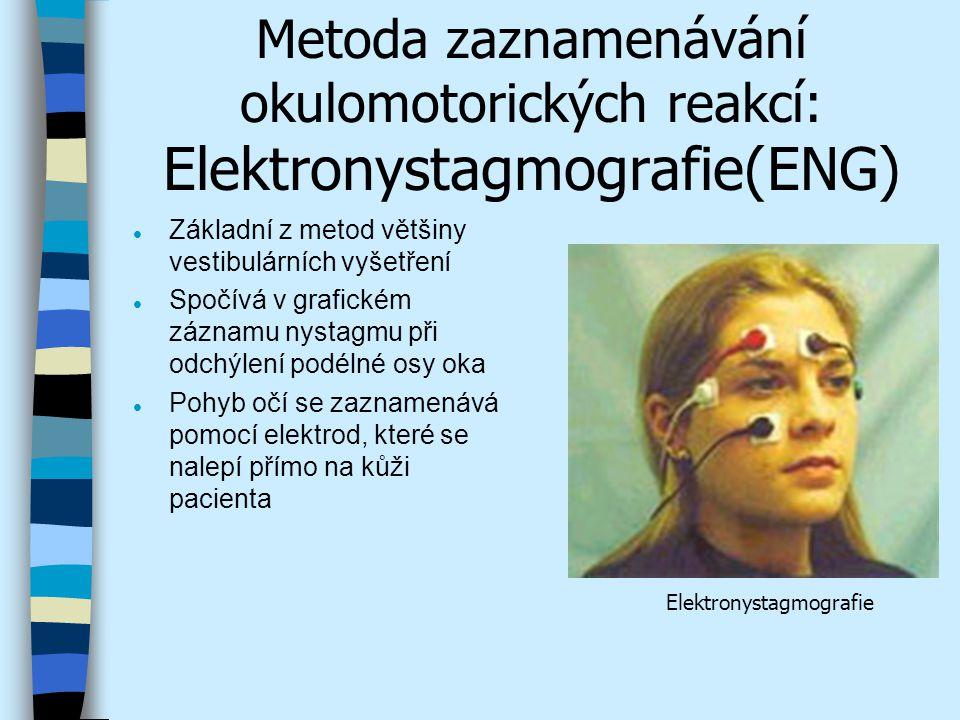 Metoda zaznamenávání okulomotorických reakcí: Videonystagmografie (VNG) l Provádí se za použití speciálních brýlí, které mají vestavěn miniaturní videosystém s infračerveným osvětlením l Zaznamenávají vodorovné, svislé a rotační pohyby očí a hlavy pacienta v momentě vyšetření l Tato metoda bez použití elektrod je nenahraditelná v těch případech, kdy nystagmus nelze zjistit elektronickou nystagmografickou metodou Brýle pro videonystagmografii a pohled na oči v monitoru