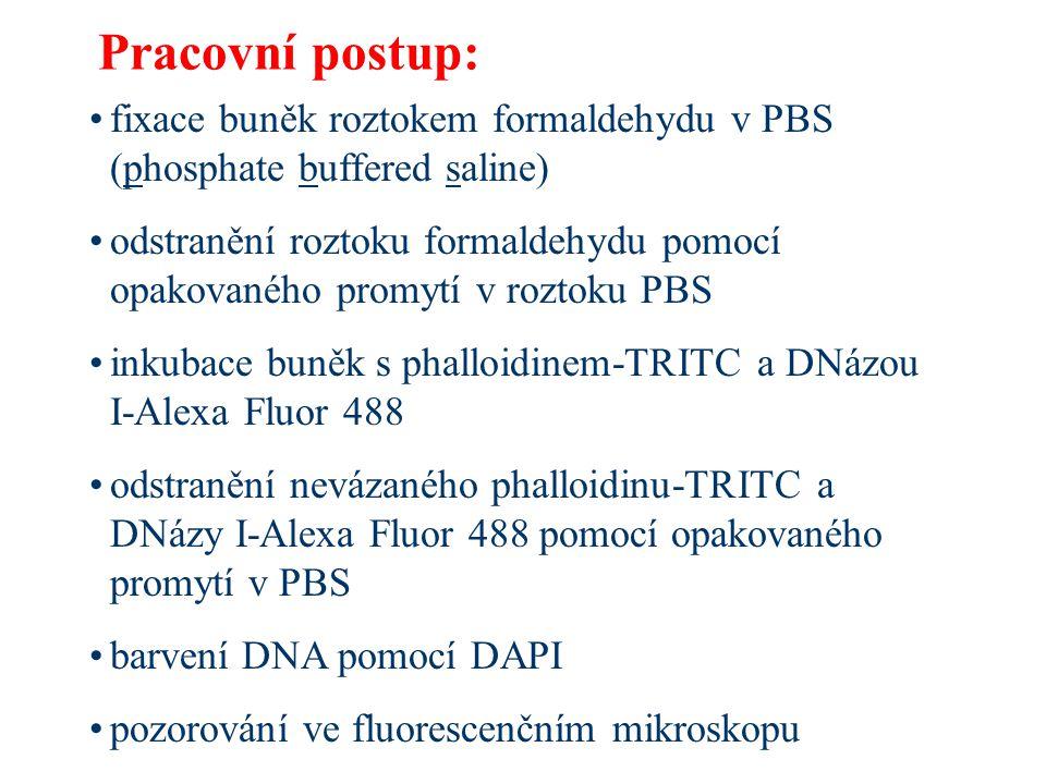 METODA 2: Porovnání zastoupení aktinu v různých typech tkání pomocí metody SDS-PAGE (sodium dodecylsulfate polyacrylamide gel electrophoresis = elektroforéza v polyakrylamidovém gelu za přítomnosti dodecylsulfátu sodného) Izolace proteinů z různých typů tkání  použité typy tkání:  sval  srdce  játra