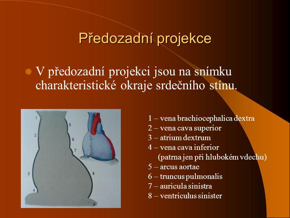 Předozadní projekce V předozadní projekci jsou na snímku charakteristické okraje srdečního stínu. 1 – vena brachiocephalica dextra 2 – vena cava super