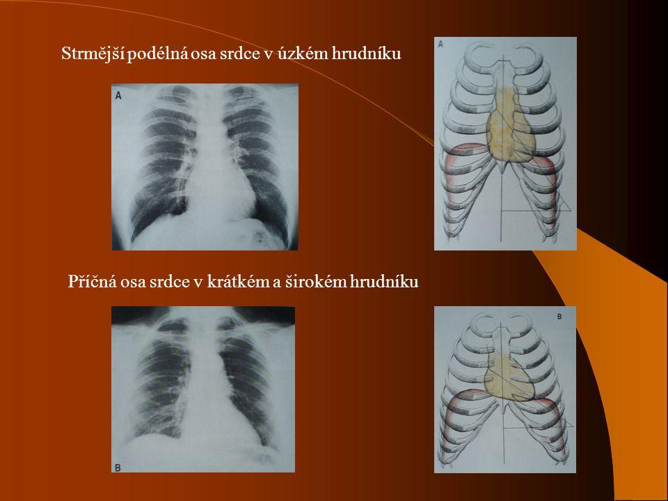 Strmější podélná osa srdce v úzkém hrudníku Příčná osa srdce v krátkém a širokém hrudníku