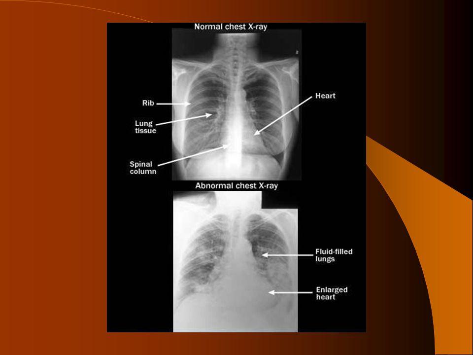 Auskultace srdce K auskultačním vyšetření se používá kombinovaný biaurální fonendoskop Místa projekcí chlopní neodpovídají místům, kde se chlopně vyšetřují poslechem (auskultací), protože krevní proud ozvy srdeční mění a zanáší.