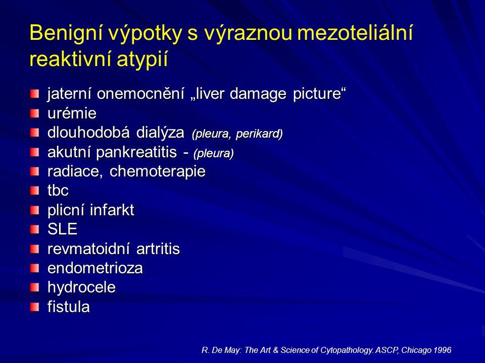 """Benigní výpotky s výraznou mezoteliální reaktivní atypií jaterní onemocnění """"liver damage picture"""" urémie dlouhodobá dialýza (pleura, perikard) akutní"""