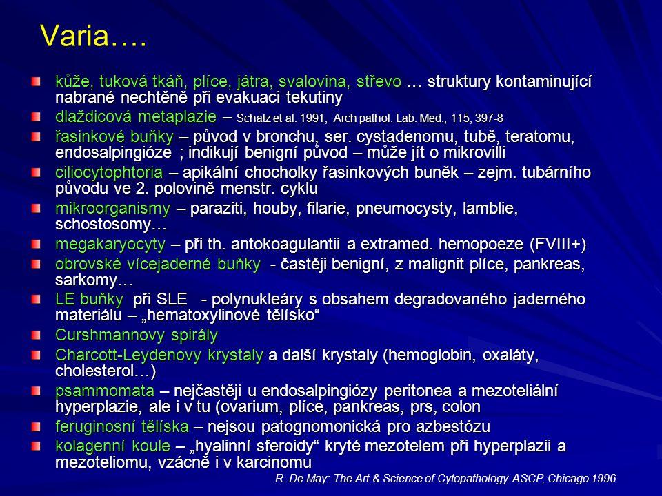 Varia…. kůže, tuková tkáň, plíce, játra, svalovina, střevo … struktury kontaminující nabrané nechtěně při evakuaci tekutiny dlaždicová metaplazie – Sc