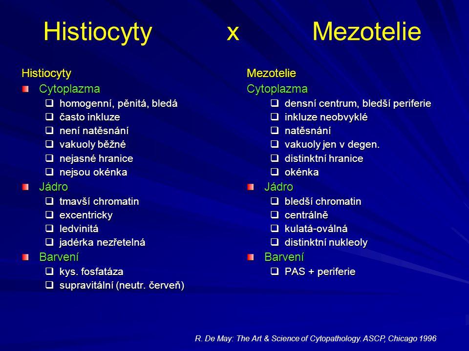 Histiocyty x Mezotelie HistiocytyCytoplazma  homogenní, pěnitá, bledá  často inkluze  není natěsnání  vakuoly běžné  nejasné hranice  nejsou oké