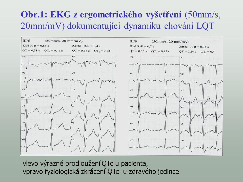 Obr.1: EKG z ergometrického vyšetření (50mm/s, 20mm/mV) dokumentující dynamiku chování LQT vlevo výrazné prodloužení QTc u pacienta, vpravo fyziologic