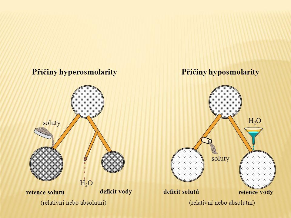 H2OH2O deficit vody retence solutů H2OH2O retence vody (relativní nebo absolutní) deficit solutů soluty Příčiny hyperosmolarityPříčiny hyposmolarity