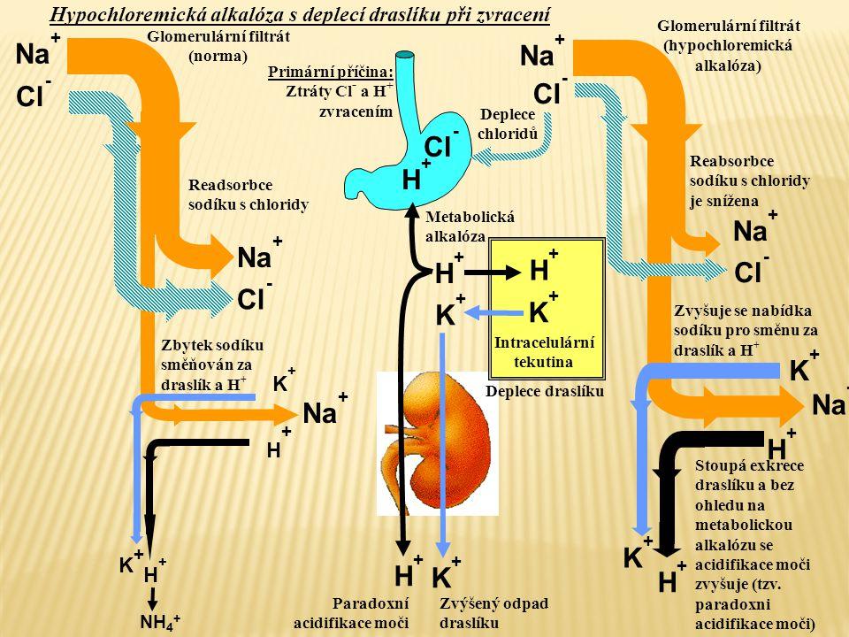 H+H+ Cl - K+K+ K+K+ H+H+ Na + H+H+ Cl - H+H+ K+K+ K+K+ H+H+ K+K+ H+H+ Paradoxní acidifikace moči Deplece draslíku Deplece chloridů Glomerulární filtrá