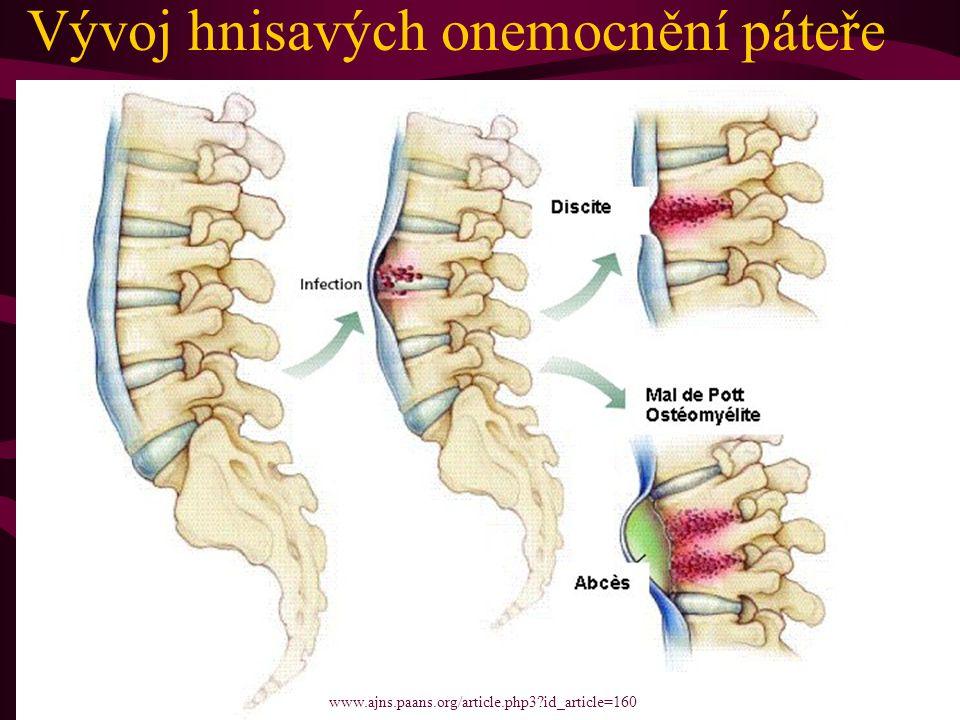 Vývoj hnisavých onemocnění páteře www.ajns.paans.org/article.php3?id_article=160