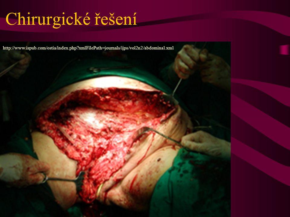 Chirurgické řešení http://www.ispub.com/ostia/index.php?xmlFilePath=journals/ijps/vol2n2/abdominal.xml
