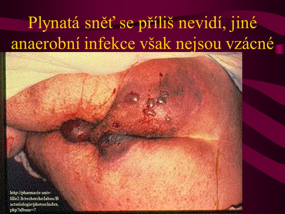 Plynatá sněť se příliš nevidí, jiné anaerobní infekce však nejsou vzácné http://pharmacie.univ- lille2.fr/recherche/labos/B acteriologie/photos/index.