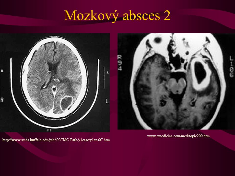 Mozkový absces 2 http://www.smbs.buffalo.edu/pth600/IMC-Path/y1case/y1ans07.htm www.emedicine.com/med/topic200.htm.