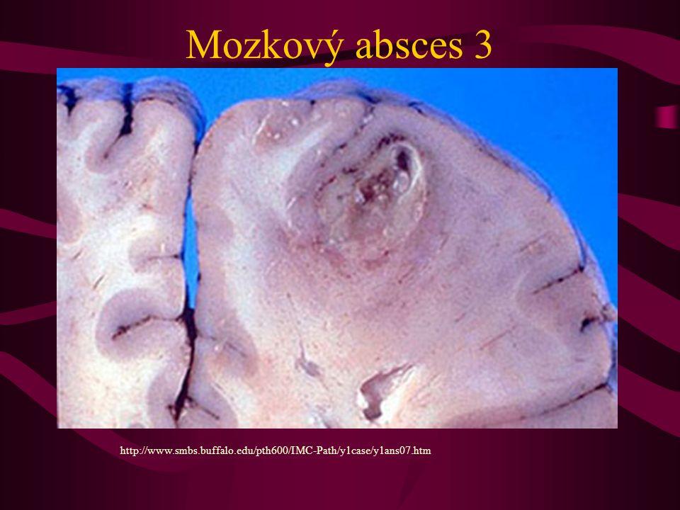 Mozkový absces 3 http://www.smbs.buffalo.edu/pth600/IMC-Path/y1case/y1ans07.htm