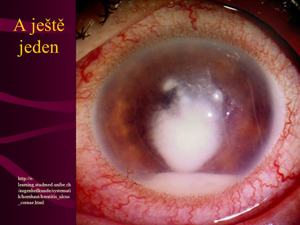 A ještě jeden http://e- learning.studmed.unibe.ch /augenheilkunde/systemati k/hornhaut/keratitis_ulcus _cornae.html