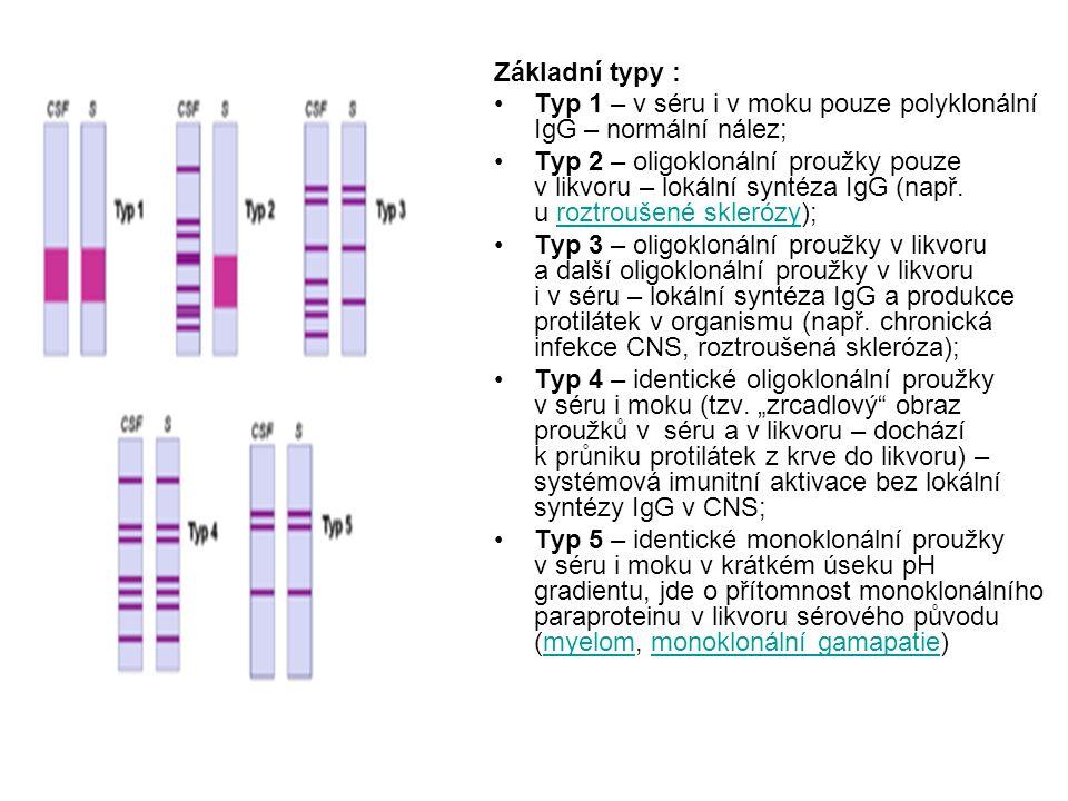 Základní typy : Typ 1 – v séru i v moku pouze polyklonální IgG – normální nález; Typ 2 – oligoklonální proužky pouze v likvoru – lokální syntéza IgG (