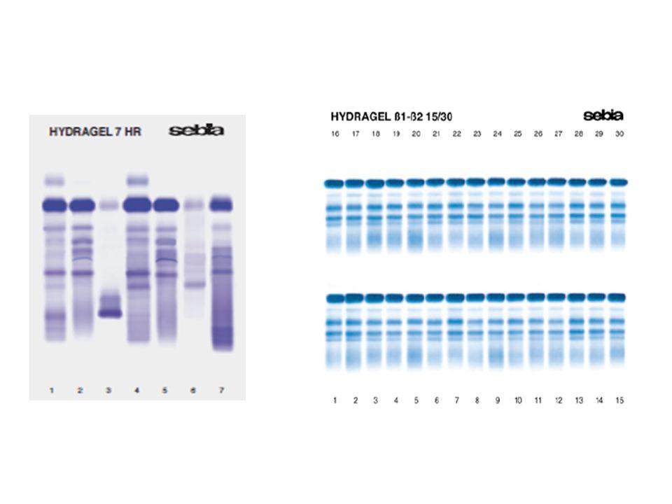 Elektroforéza bílkovin krevního séra: Kapilární elektroforéza Elektroforetické dělení proteinů probíhá v silikonových kapilárách o délce 30 -50 cm s vnitřním průměrem 25-100 µm.
