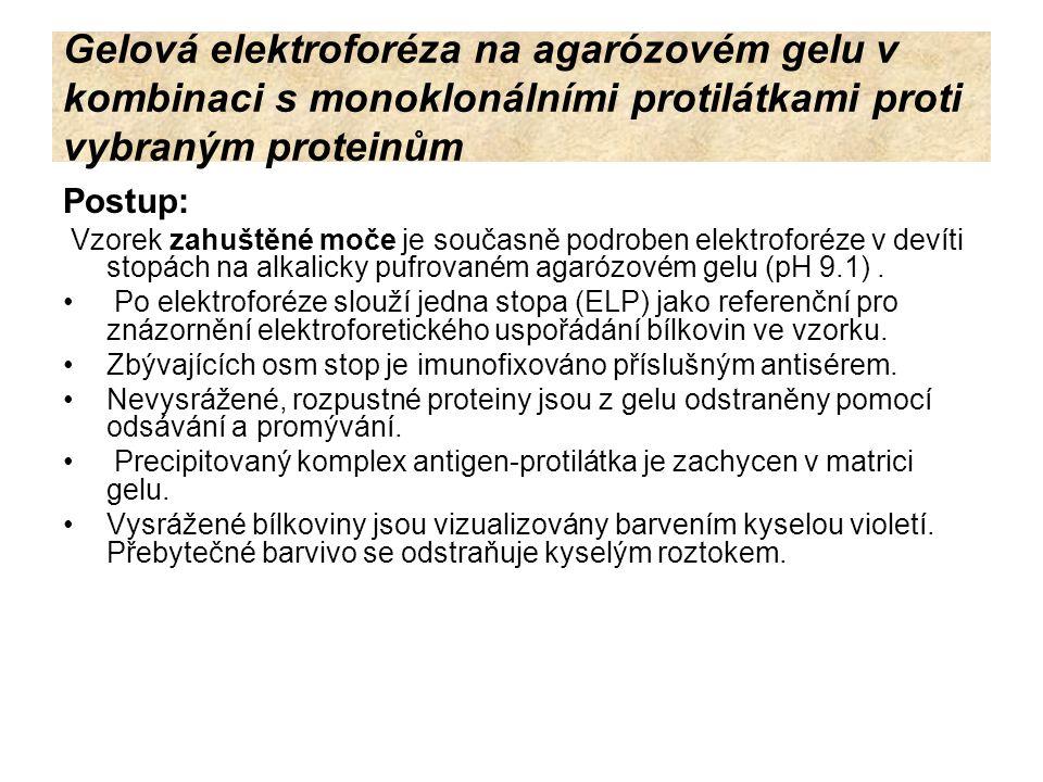 Gelová elektroforéza na agarózovém gelu v kombinaci s monoklonálními protilátkami proti vybraným proteinům Postup: Vzorek zahuštěné moče je současně p