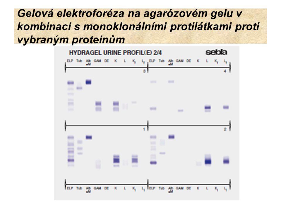 SDS – elektroforéza na agarózovém (SDS AGE) nebo polyakrylamidovém gelu (SDS PAGE) Používají se neutrálně pufrované SDS gely - separují močové bílkoviny podle jejich molekulové hmotnosti a zcela jasně odlišuje bílkoviny tubulární od bílkovin glomerulárního původu.