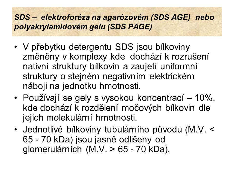 SDS – elektroforéza na agarózovém (SDS AGE) nebo polyakrylamidovém gelu (SDS PAGE) V přebytku detergentu SDS jsou bílkoviny změněny v komplexy kde doc