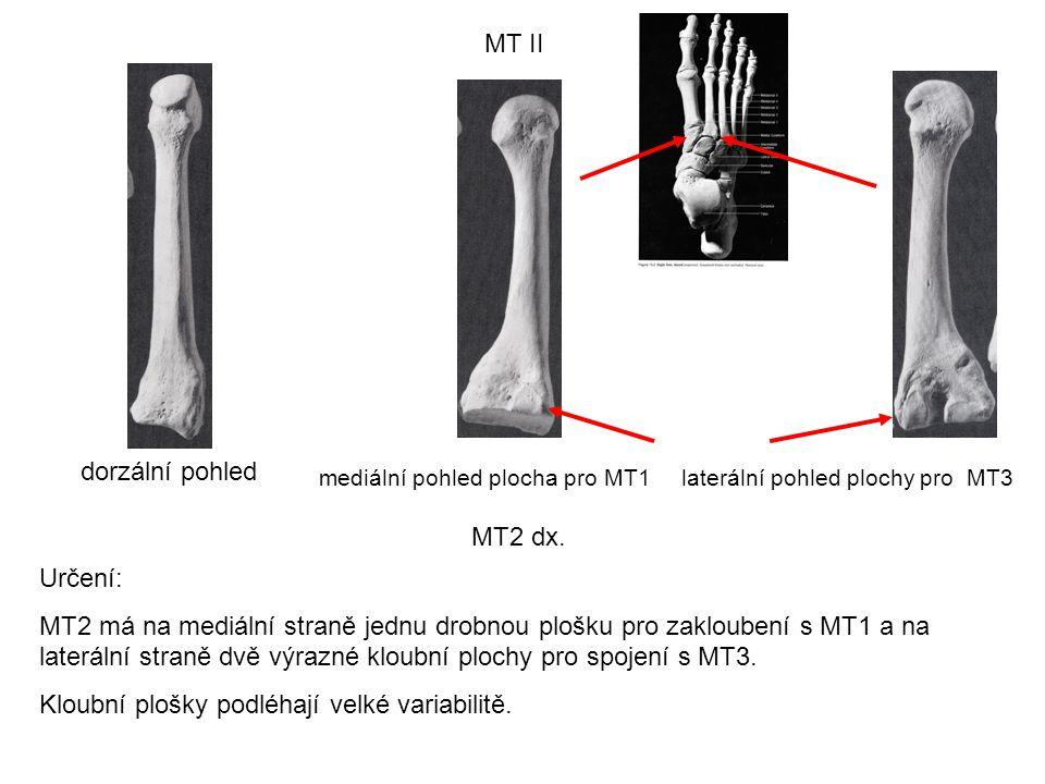 MT II dorzální pohled mediální pohled plocha pro MT1laterální pohled plochy pro MT3 MT2 dx. Určení: MT2 má na mediální straně jednu drobnou plošku pro