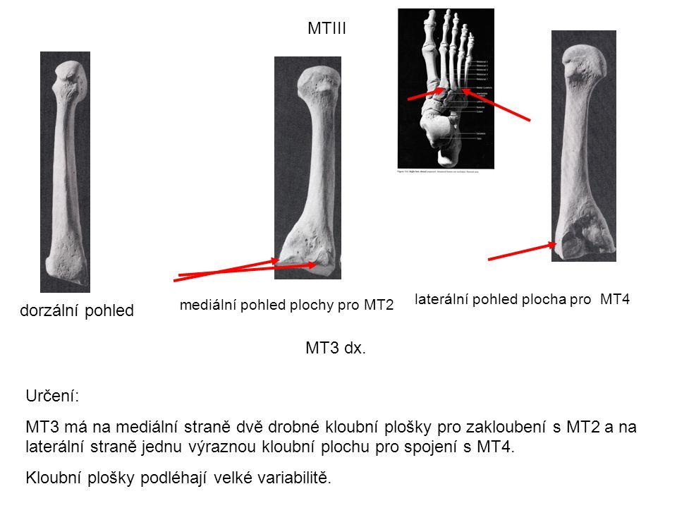 MTIII dorzální pohled laterální pohled plocha pro MT4 mediální pohled plochy pro MT2 Určení: MT3 má na mediální straně dvě drobné kloubní plošky pro z