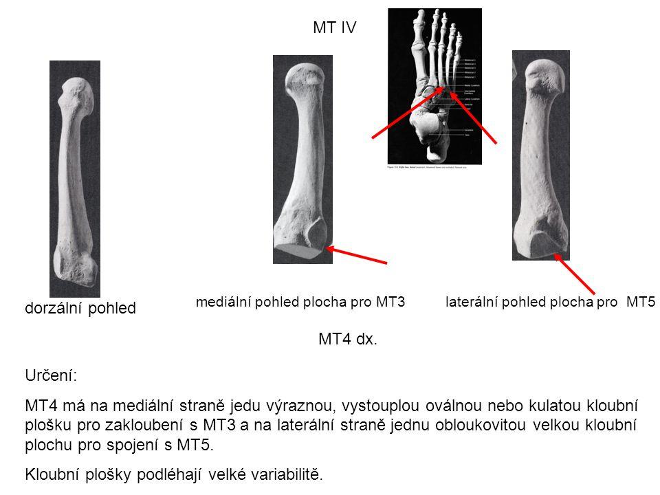 MT IV dorzální pohled laterální pohled plocha pro MT5mediální pohled plocha pro MT3 MT4 dx. Určení: MT4 má na mediální straně jedu výraznou, vystouplo