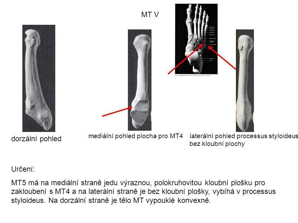 MT V dorzální pohled mediální pohled plocha pro MT4laterální pohled processus styloideus bez kloubní plochy Určení: MT5 má na mediální straně jedu výr