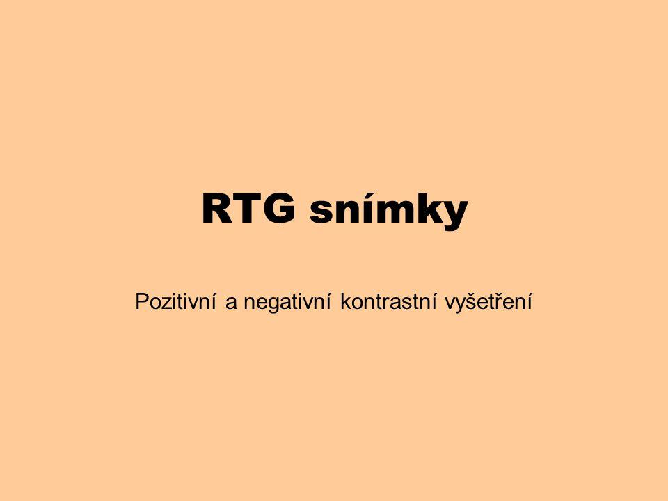 RTG snímky Pozitivní a negativní kontrastní vyšetření