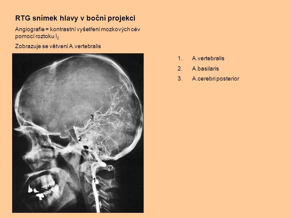 RTG snímek hlavy v boční projekci Angiografie = kontrastní vyšetření mozkových cév pomocí roztoku I 2 Zobrazuje se větvení A.vertebralis 1.A.vertebralis 2.A.basilaris 3.A.cerebri posterior 1 2 3