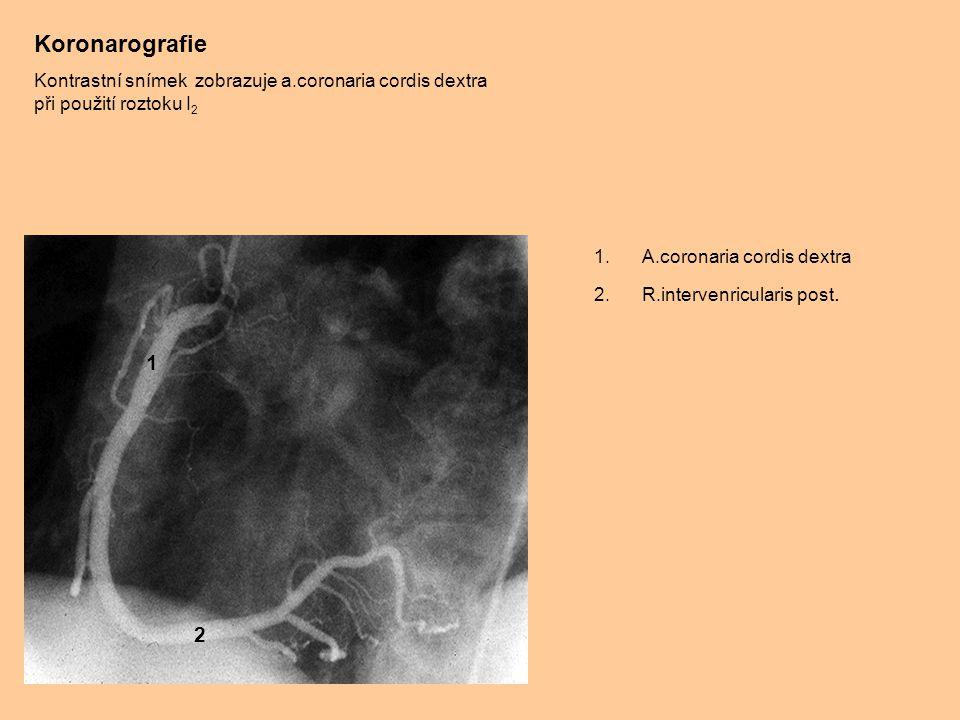 Rtg snímek břicha Kontrastní vyšetření jejuna a ilea při použití I 2 1.Jejunum 2.Ileum 3.Os coxae 4.Caput femoris 1 2 3 4 1 1