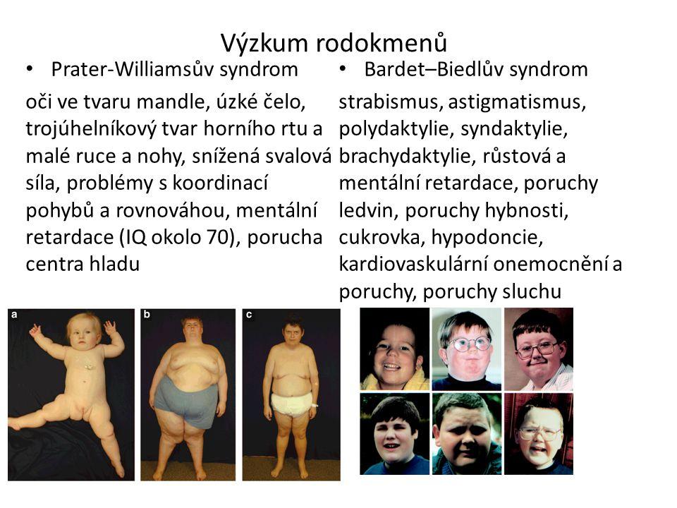 Výzkum rodokmenů Prater-Williamsův syndrom oči ve tvaru mandle, úzké čelo, trojúhelníkový tvar horního rtu a malé ruce a nohy, snížená svalová síla, problémy s koordinací pohybů a rovnováhou, mentální retardace (IQ okolo 70), porucha centra hladu Bardet–Biedlův syndrom strabismus, astigmatismus, polydaktylie, syndaktylie, brachydaktylie, růstová a mentální retardace, poruchy ledvin, poruchy hybnosti, cukrovka, hypodoncie, kardiovaskulární onemocnění a poruchy, poruchy sluchu