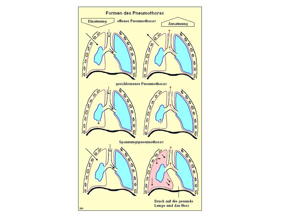 příznaky pneumotoraxu bolest na hrudi možná dušnost v případě traumatického známky poranění u otevřeného pěnící krev v ráně u ventilového poruchy oběhu