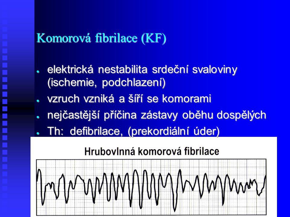Komorová fibrilace (KF) ● elektrická nestabilita srdeční svaloviny (ischemie, podchlazení) ● vzruch vzniká a šíří se komorami ● nejčastější příčina zástavy oběhu dospělých ● Th: defibrilace, (prekordiální úder)