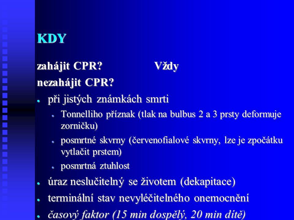 KDY zahájit CPR.Vždy nezahájit CPR.