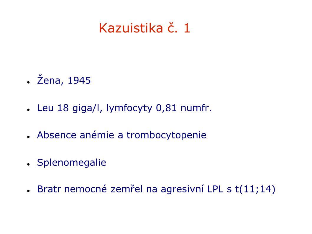 Kazuistika č. 1 Žena, 1945 Leu 18 giga/l, lymfocyty 0,81 numfr. Absence anémie a trombocytopenie Splenomegalie Bratr nemocné zemřel na agresivní LPL s