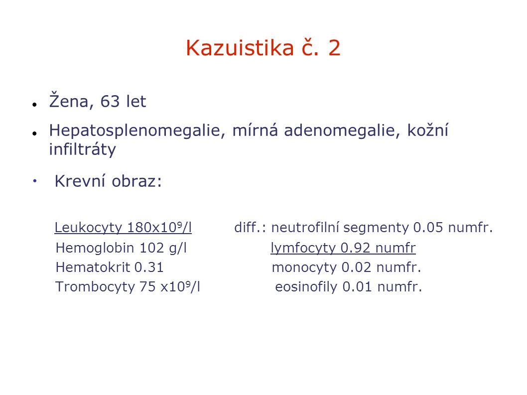 Kazuistika č. 2 Žena, 63 let Hepatosplenomegalie, mírná adenomegalie, kožní infiltráty Krevní obraz: Leukocyty 180x10 9 /l diff.: neutrofilní segmenty