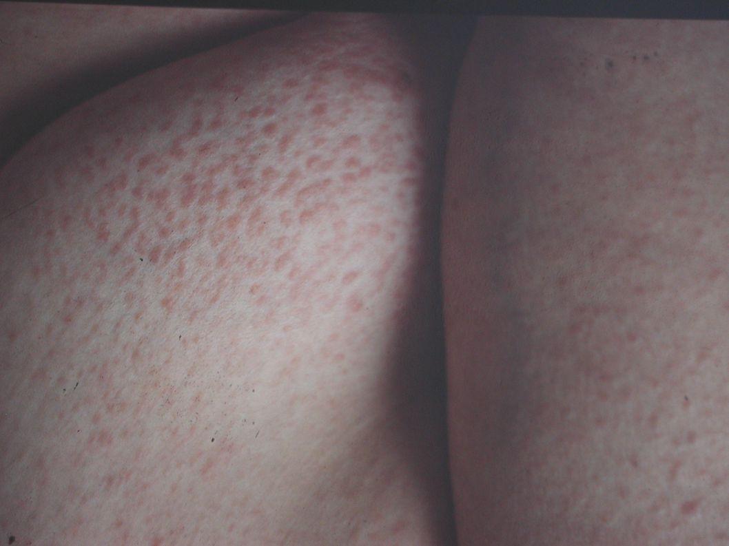 Imprint lymfatické uzliny