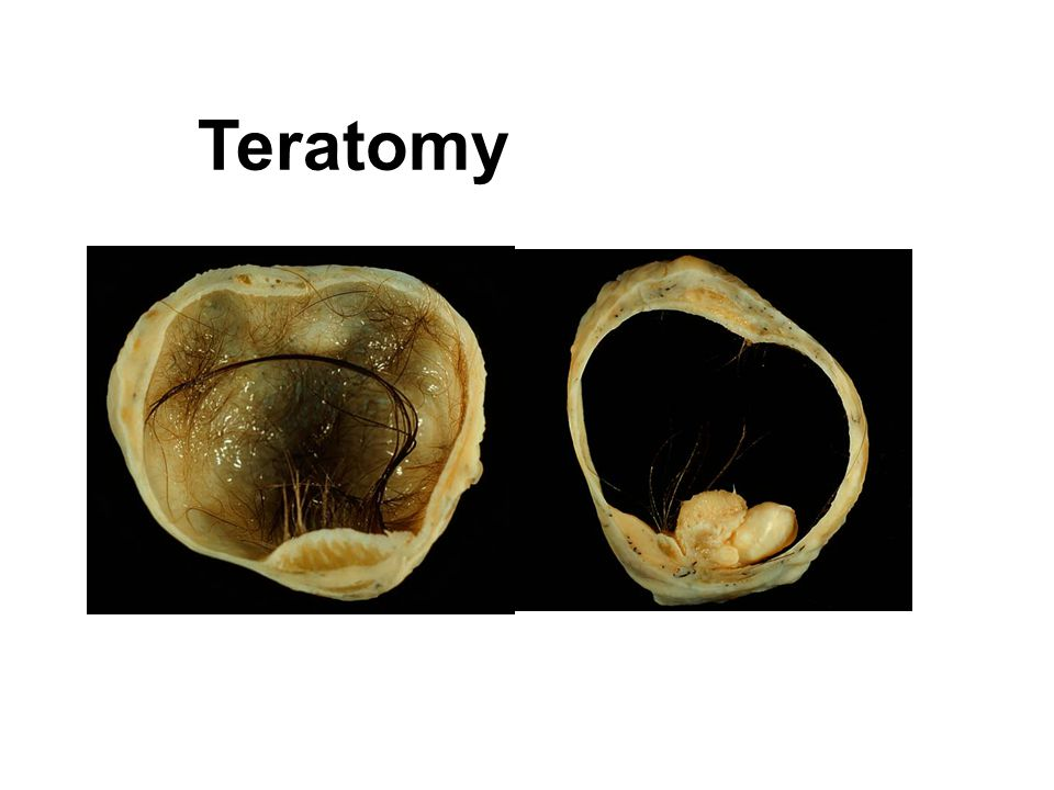 Teratomy