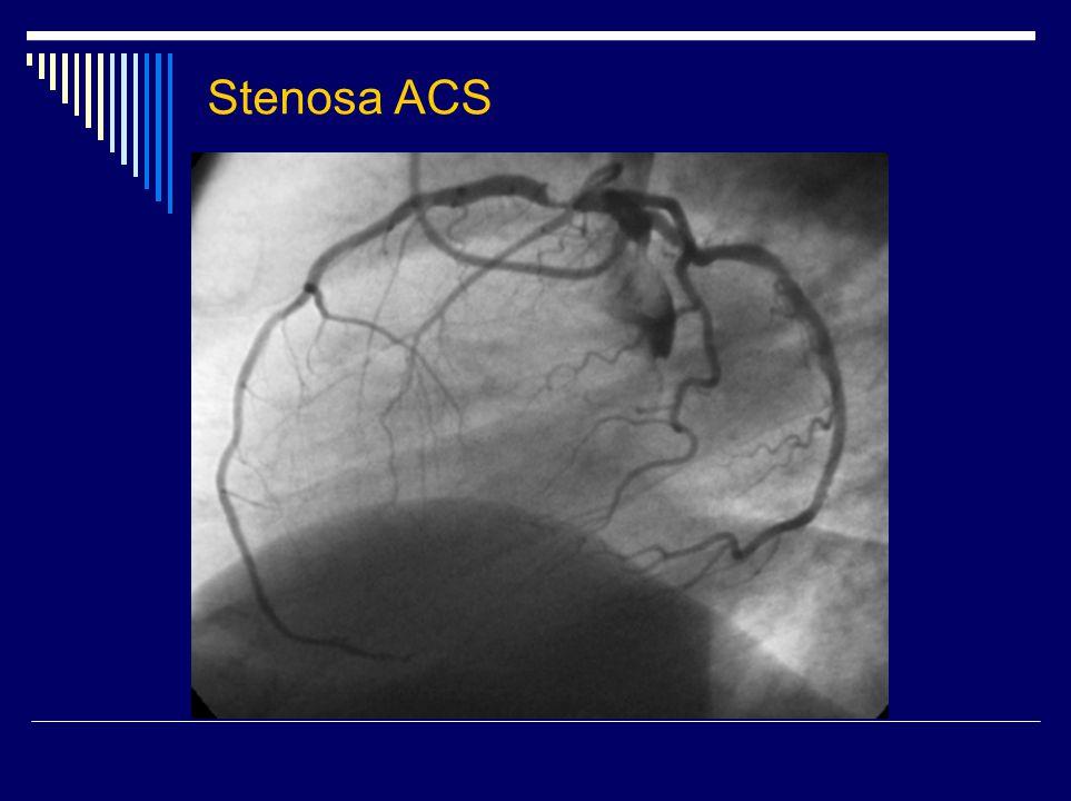 Arteria coronaria dextra ACD ze zadopřední projekce ACD z pravolevé projekce ACD z levopravé projekce