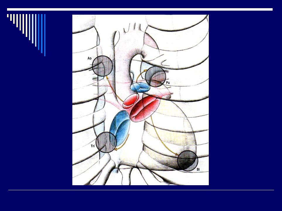 Základní klinické jednotky  Endokard: endokarditis, chlopenní vady (vrozené, získané)  Myokard: ICHS (AP, IM = záhať), myokarditis, kardiomyopatie  Perikard: perikarditis, tamponáda  Převodní soustava: arytmie  Vývojové vady: defekty sept, transpozice velkých tepen, Fallotova tri-,tetra- pentalogie, otevřená Botallova dučej, koarkatce aorty