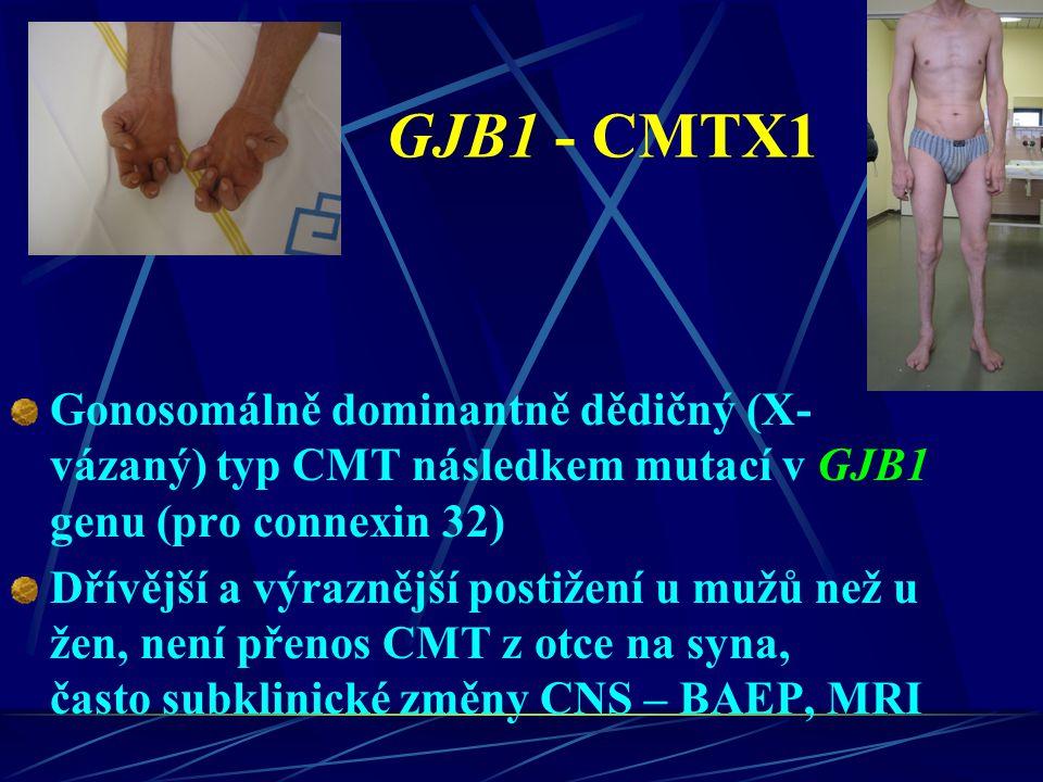 GJB1 - CMTX1 Gonosomálně dominantně dědičný (X- vázaný) typ CMT následkem mutací v GJB1 genu (pro connexin 32) Dřívější a výraznější postižení u mužů
