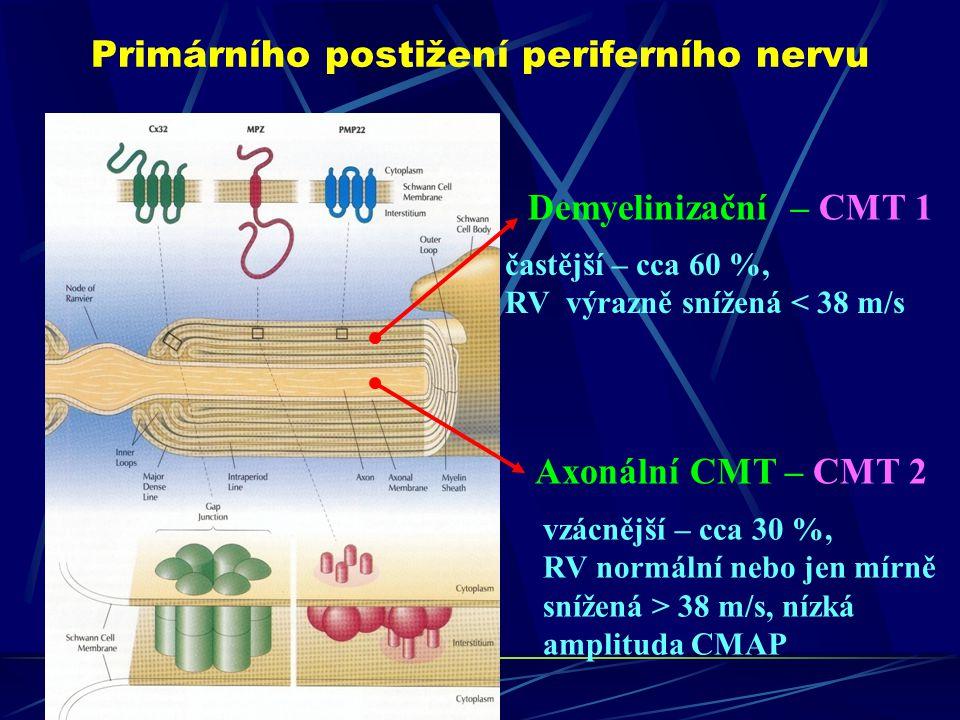 Primárního postižení periferního nervu Demyelinizační – CMT 1 Axonální CMT – CMT 2 častější – cca 60 %, RV výrazně snížená < 38 m/s vzácnější – cca 30