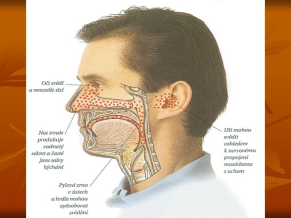 Příznaky sezónní pylové alergie ♣ Oči svědí a neustále slzí ♣ Nos trvale produkuje vodnatý sekret a časté jsou salvy kýchání ♣ Pylová zrna v ústech a