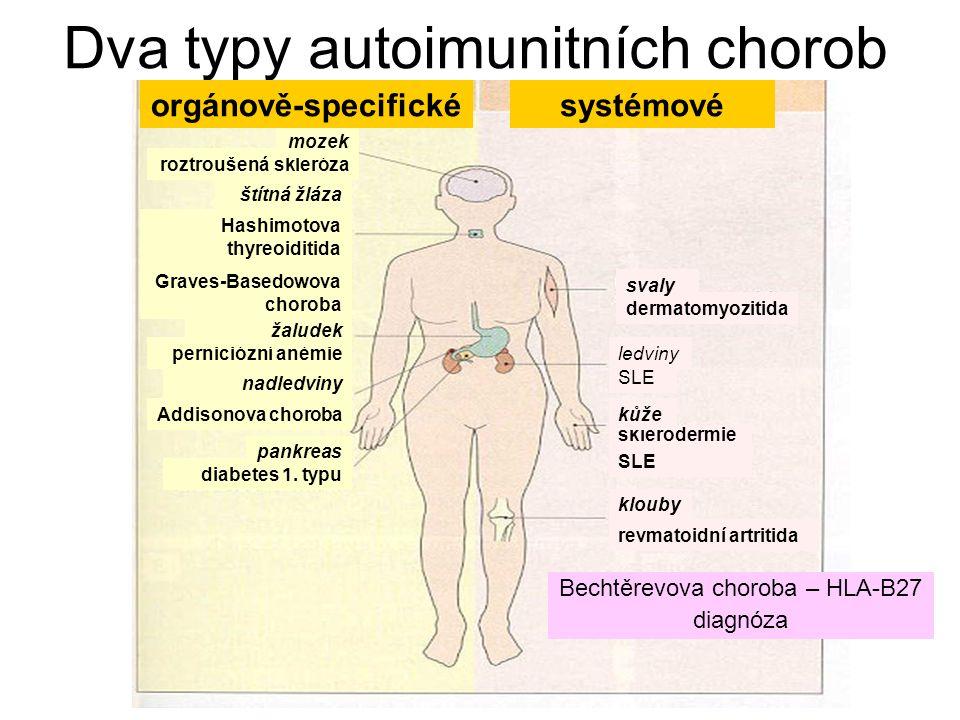 Dva typy autoimunitních chorob Bechtěrevova choroba – HLA-B27 diagnóza diabetes 1. typu systémové Hashimotova thyreoiditida Graves-Basedowova choroba