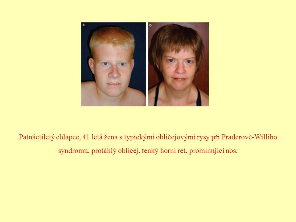 Patnáctiletý chlapec, 41 letá žena s typickými obličejovými rysy při Praderově-Williho syndromu, protáhlý obličej, tenký horní ret, prominující nos.