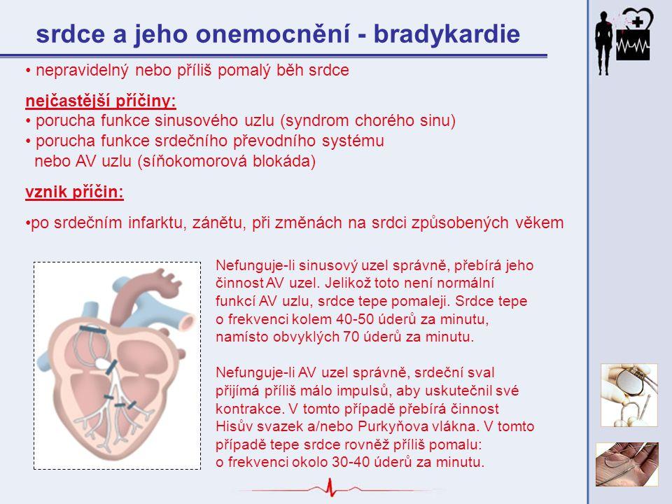 srdce a jeho onemocnění - bradykardie nepravidelný nebo příliš pomalý běh srdce nejčastější příčiny: porucha funkce sinusového uzlu (syndrom chorého s
