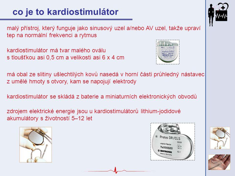 pomocí kardiostimulátoru jsou na srdeční svalovinu přenášeny malé, přesně časované elektrické impulzy, které vyvolávají pravidelné stahy srdce, podobně jako je tomu u zdravého srdce moderní kardiostimulátory pracují jen tehdy, chybí-li přirozený rytmus srdce co je to kardiostimulátor kardiostimulátor ke své funkci nezbytně potřebuje také stimulační elektrodu - někdy se proto místo slova kardiostimulátor používá výrazu kardiostimulační systém