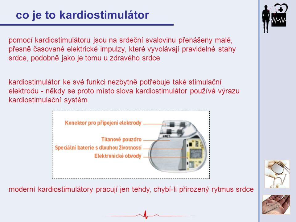 pomocí kardiostimulátoru jsou na srdeční svalovinu přenášeny malé, přesně časované elektrické impulzy, které vyvolávají pravidelné stahy srdce, podobn