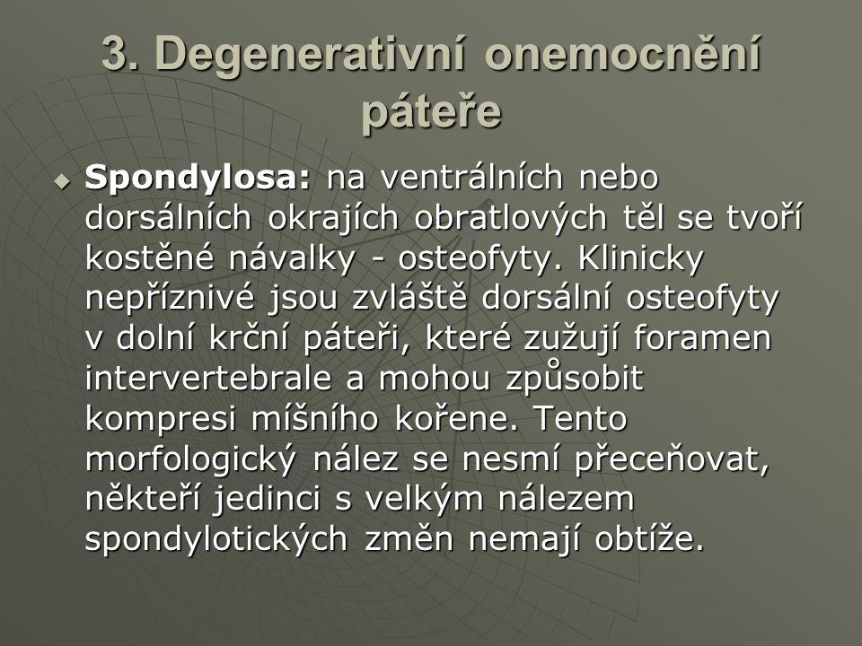 3. Degenerativní onemocnění páteře  Spondylosa: na ventrálních nebo dorsálních okrajích obratlových těl se tvoří kostěné návalky - osteofyty. Klinick