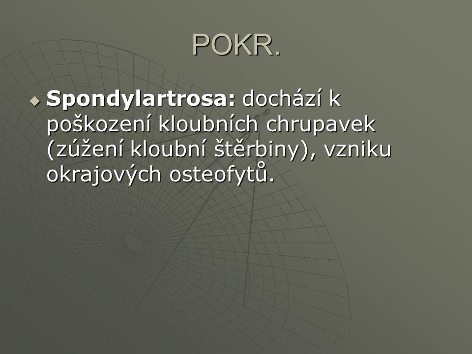 POKR.  Spondylartrosa: dochází k poškození kloubních chrupavek (zúžení kloubní štěrbiny), vzniku okrajových osteofytů.